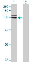 Western blot - SEMA3G antibody (ab69166)