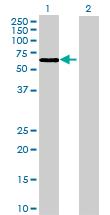 Western blot - ACSF2 antibody (ab69168)