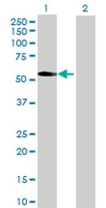 Western blot - PNPLA3 antibody (ab69170)