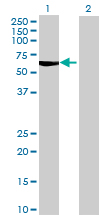 Western blot - MCCC2 antibody (ab69173)