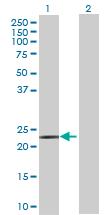 Western blot - ACAD10 antibody (ab69174)