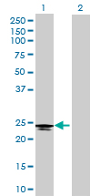 Western blot - C6orf25 antibody (ab69175)