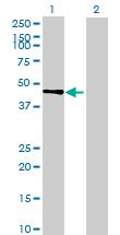 Western blot - POPDC2 antibody (ab69176)