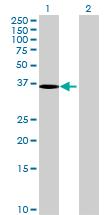 Western blot - MAGEF1 antibody (ab69177)