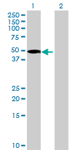 Western blot - ACTR3B antibody (ab69178)