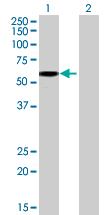 Western blot - TSEN2 antibody (ab69179)