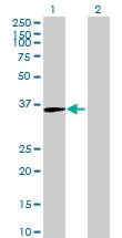 Western blot - Uroplakin IIIB antibody (ab69181)