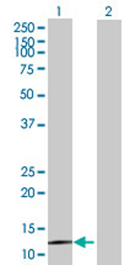 Western blot - BBS10 antibody (ab69200)
