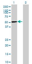 Western blot - GRINL1A antibody (ab69202)