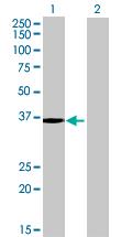 Western blot - NECAB3 antibody (ab69204)
