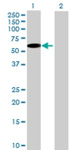 Western blot - SCOT2 antibody (ab69207)