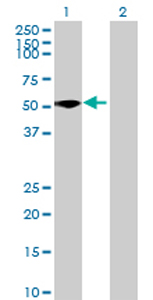 Western blot - ZC3H10 antibody (ab69209)