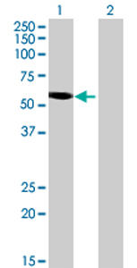 Western blot - LRP11 antibody (ab69212)