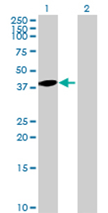 Western blot - C8orf76 antibody (ab69213)