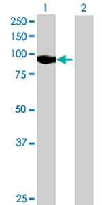 Western blot - Anti-MUM1 antibody (ab69220)