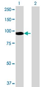 Western blot - REPS1 antibody (ab69221)