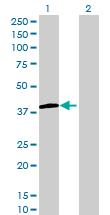 Western blot - LMAN2L antibody (ab69222)