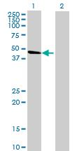 Western blot - ACTL8 antibody (ab69223)