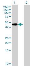 Western blot - TMEM49 antibody (ab69224)