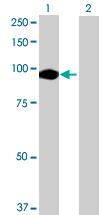 Western blot - LOC81691 antibody (ab69225)