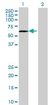 Western blot - RNF146 antibody (ab69228)