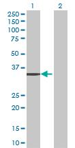 Western blot - SFXN3 antibody (ab69229)