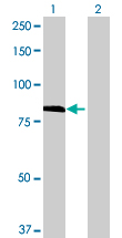 Western blot - TMTC1 antibody (ab69244)
