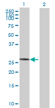 Western blot - SPATA9 antibody (ab69259)