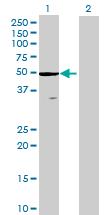 Western blot - ZCCHC3 antibody (ab69260)