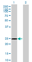 Western blot - DNAJC30 antibody (ab69263)