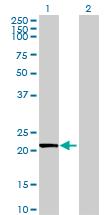 Western blot - EFCAB2 antibody (ab69264)