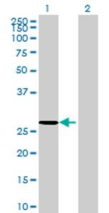 Western blot - COG8 antibody (ab69268)