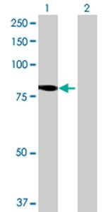 Western blot - KIAA1841 antibody (ab69271)