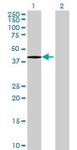 Western blot - B3GNT5 antibody (ab69272)