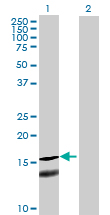 Western blot - MRPL43 antibody (ab69273)