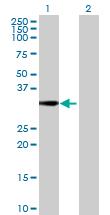 Western blot - HDHD2 antibody (ab69274)