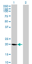 Western blot - LYZL1 antibody (ab69275)