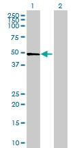 Western blot - ST6GAL2 antibody (ab69276)