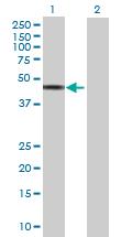 Western blot - ABHD1 antibody (ab69278)