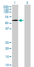 Western blot - GPT2 antibody (ab69279)