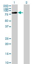 Western blot - ZCCHC7 antibody (ab69281)