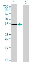 Western blot - ZMYND12 antibody (ab69282)