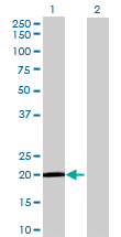 Western blot - GCET2 antibody (ab69289)