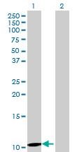Western blot - UTS2D antibody (ab69290)