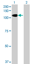 Western blot - ALS2CL antibody (ab69291)