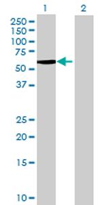 Western blot - CYP4X1 antibody (ab69292)