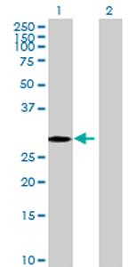 Western blot - FLJ37201 antibody (ab69293)