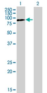 Western blot - PNPT1 antibody (ab69295)