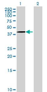 Western blot - HAO1 antibody (ab69298)