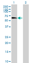 Western blot - SIAE antibody (ab69300)